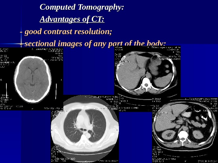 Computed Tomography: Advantages of CT: - good contrast resolution; - sectional images of
