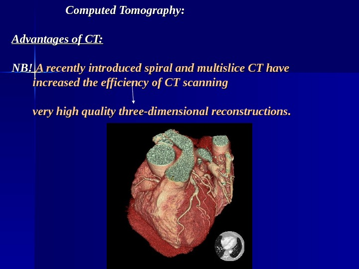 Computed Tomography: Advantages of CT: NB! A recently introduced spiral and multislice CT