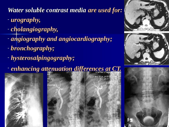 Water soluble contrast media are used for:  -  urography,  -  cholangiography,