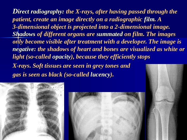 DD irect radiography:  the X-rays, after having passed through the patient, create an image directly