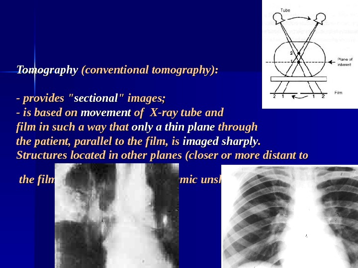 Tomography (conventional tomography): - provides  sectional  images; - is based on movement of X-ray