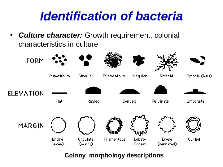 Identification of bacteria • Culture character:  Growth requirement, colonial characteristics in culture Colony morphology descriptions