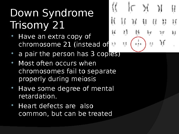Down Syndrome Trisomy 21 Have an extra copy of chromosome 21 (instead of  a pair