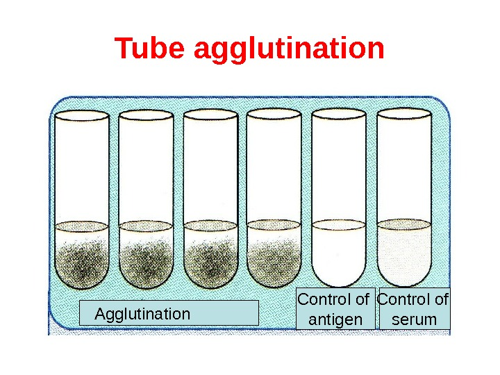 Tube agglutination Agglutination   Control of antigen Control of serum