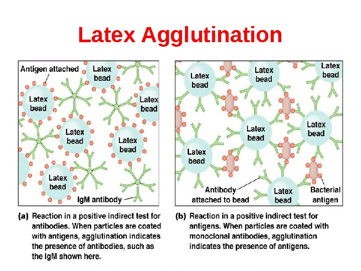 Latex Agglutination