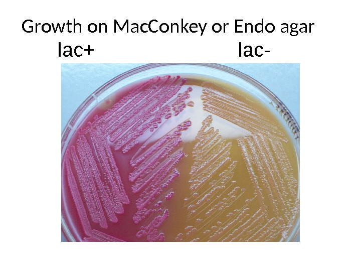 Growth on Mac. Conkey or Endo agar lac+ lac-