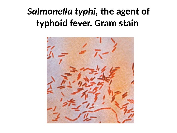 Salmonella typhi,  the agent of typhoid fever. Gram stain