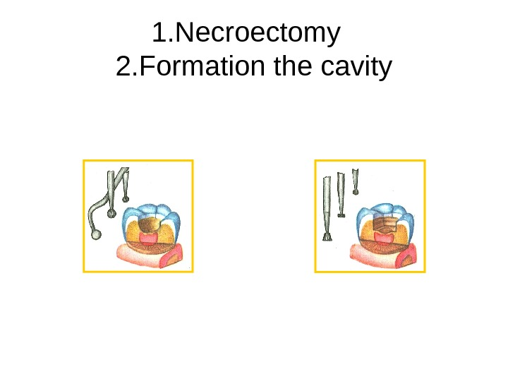 1. Necroectomy  2. Formation the cavity