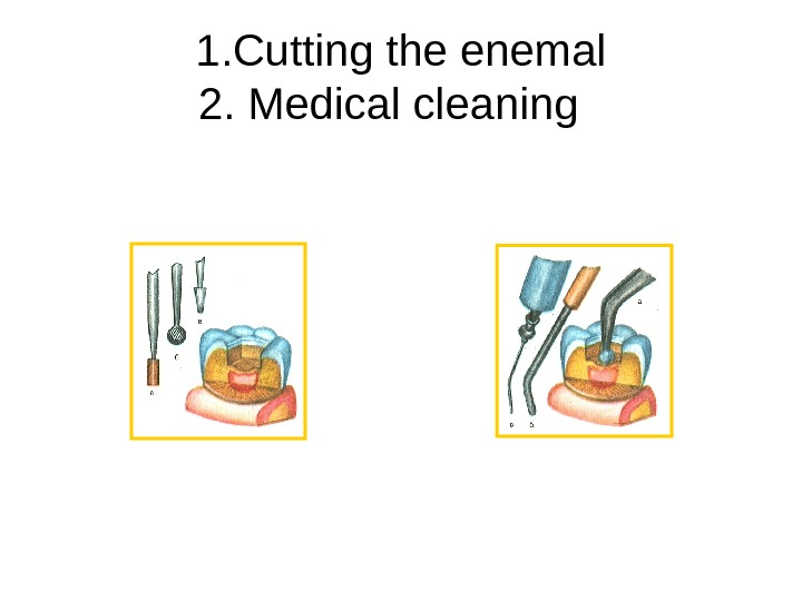1. Cutting the enemal 2. Medical cleaning