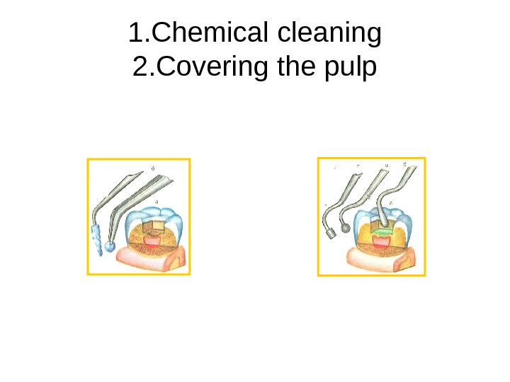 1. Chemical cleaning 2. Covering the pulp