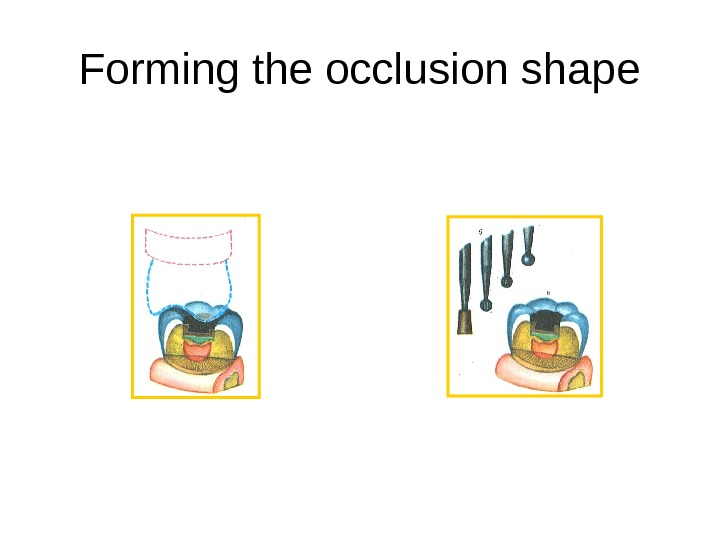 Forming the occlusion shape