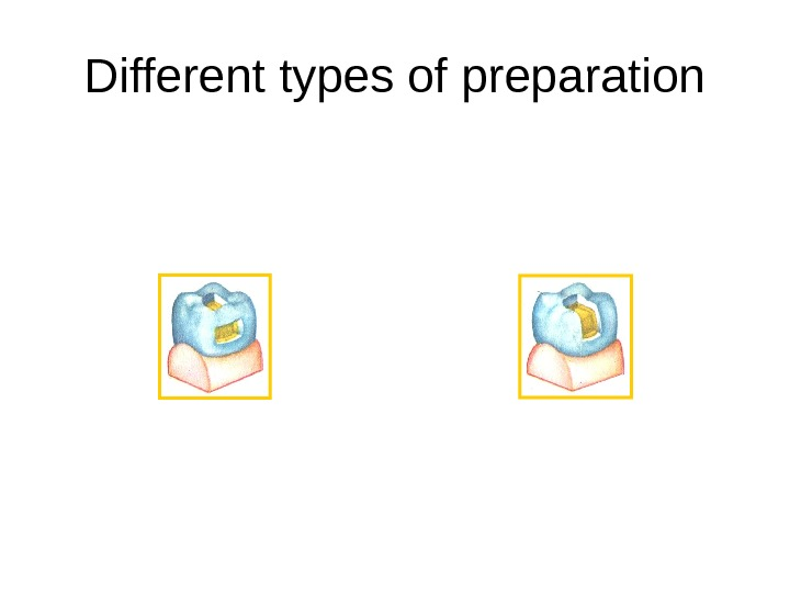 Different types of preparation