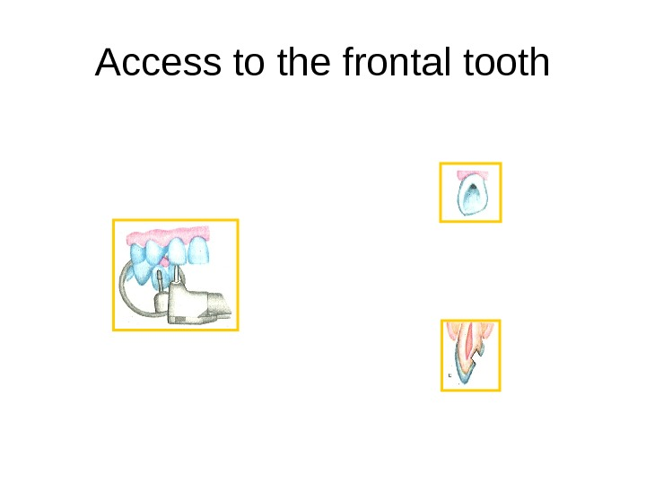 Access to the frontal tooth