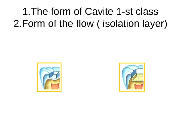 1. The form of Cavite 1 -st class 2. Form of the flow (