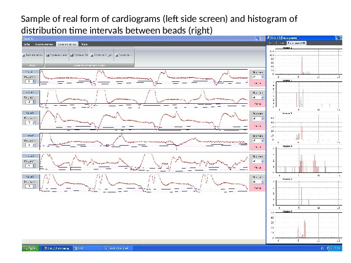 Sample of real form of cardiograms (left side screen) and histogram of distribution time intervals between