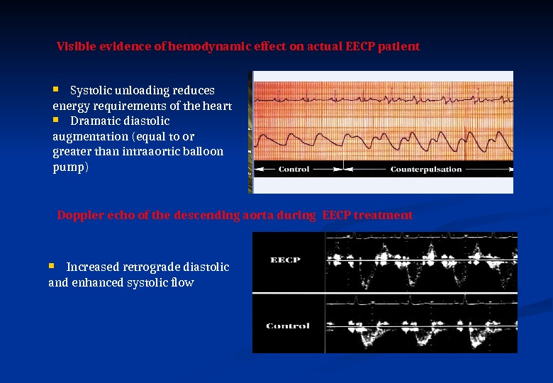 Visible evidence of hemodynamic effect on actual EECP patient  Systolic unloading reduces energy requirements