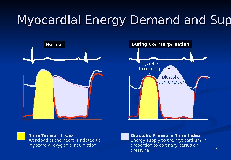 77 Myocardial Energy Demand Supply  Time Tension Index Workload of the heart is related
