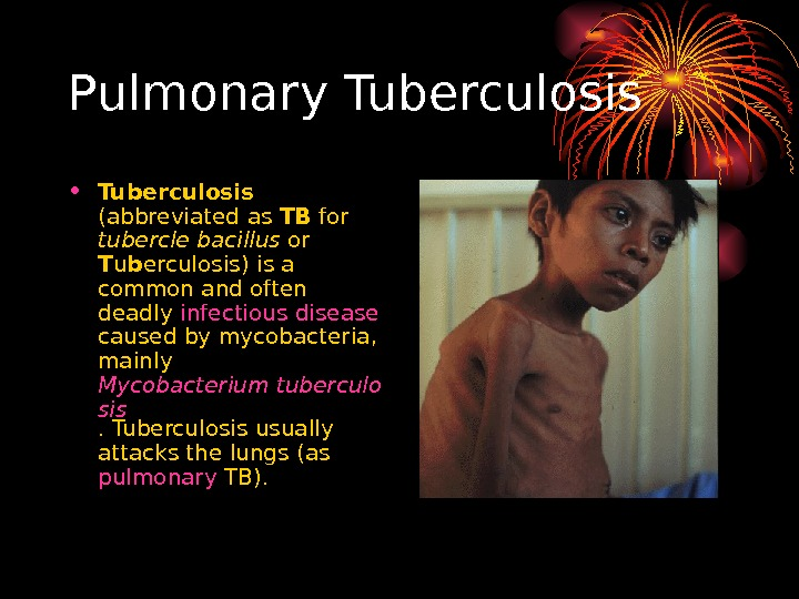 Pulmonary Tuberculosis • Tuberculosis  (abbreviated as TB for tubercle bacillus or T u