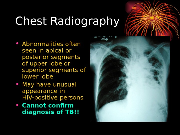 Chest Radiography • Abnormalities often seen in apical or posterior segments of upper l