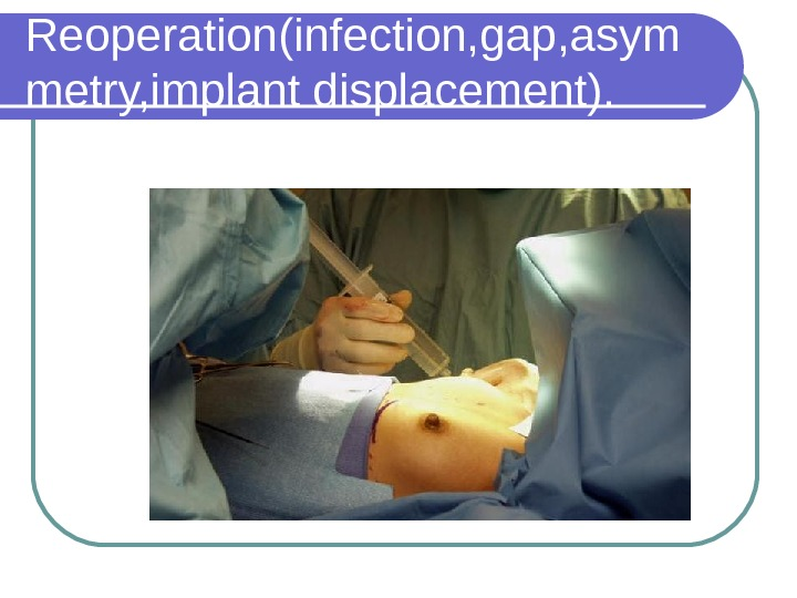 Reoperation(infection, gap, asym metry, implant displacement).