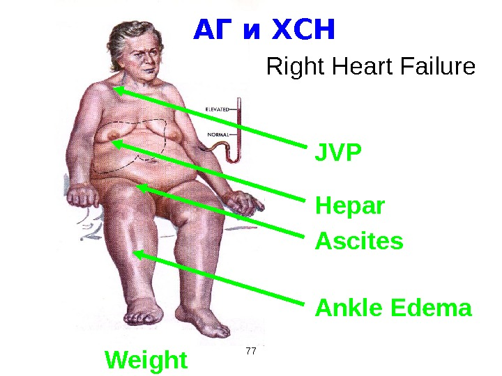 77 Right Heart Failure JVP Hepar Ascites Ankle Edema Weight АГ и ХСН