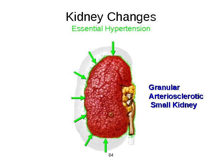 84Kidney Changes Essential Hypertension Granular Arteriosclerotic Small Kidney
