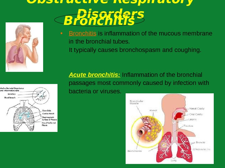 • Bronchitis is inflammation of the mucous membrane in  the bronchial tubes.