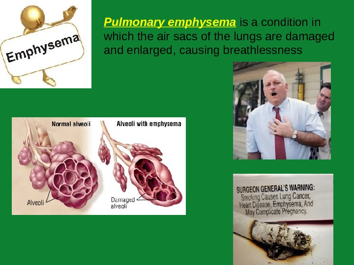 P ulmonary emphysema  is a condition in which the air sacs of the