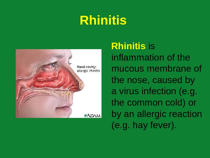 Rhinitis is inflammation of the mucous membrane of the nose, caused by a virus