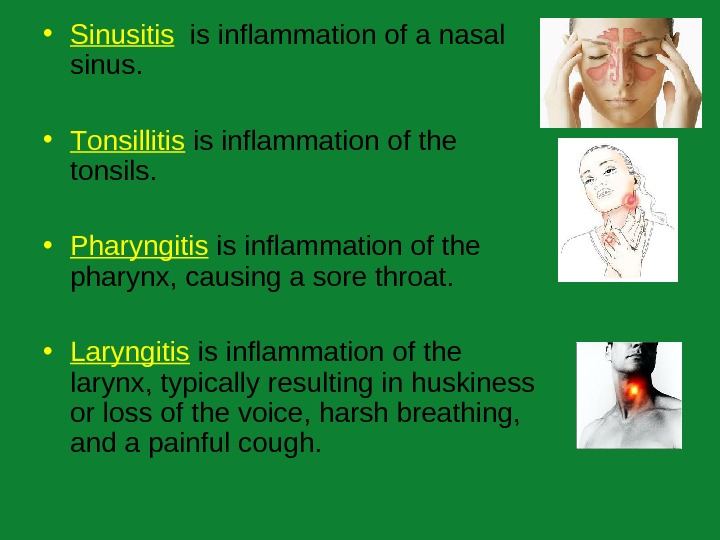 • Sinusitis  is inflammation of a nasal sinus.  • T onsillitis