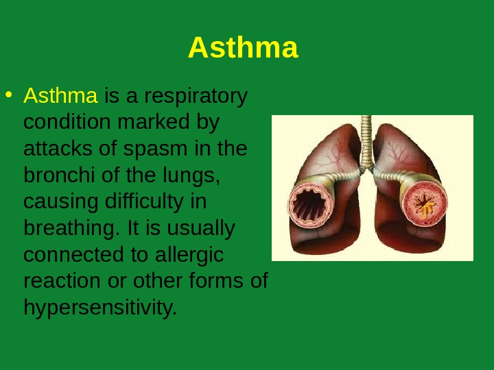 A sthma  • A sthma  is a respiratory condition marked by attacks