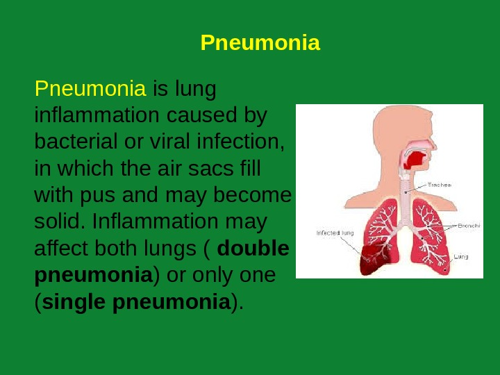 Pneumonia is lung inflammation caused by bacterial or viral infection,  in which the