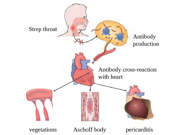 vegetations Aschoff body pericarditis. Strep throat Antibody production Antibody cross-reaction with heart