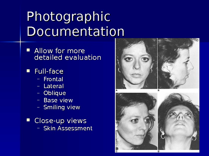Photographic Documentation Allow for more detailed evaluation Full-face – Frontal – Lateral – Oblique – Base