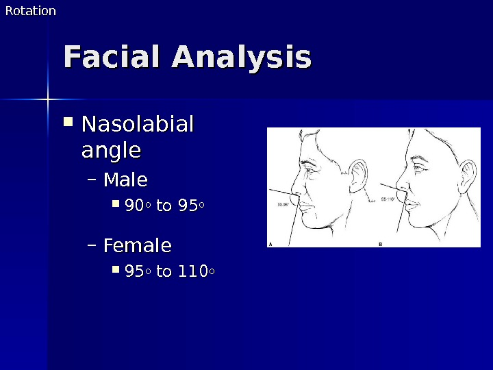 Facial Analysis Nasolabial angle – Male 9090 oo to 95 oo – Female 9595 oo to
