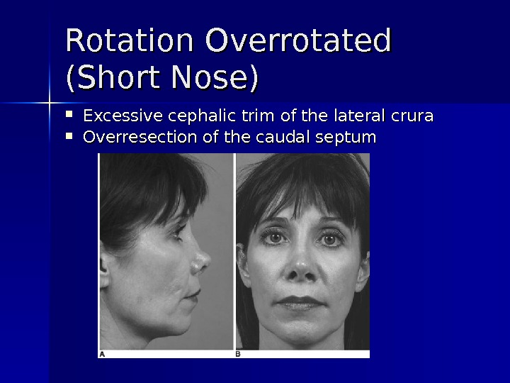 Rotation Overrotated (Short Nose) Excessive cephalic trim of the lateral crura  Overresection of the caudal