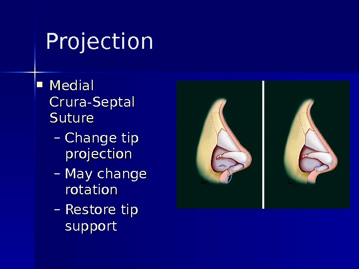 Projection Medial Crura-Septal Suture – Change tip projection – May change rotation – Restore tip support