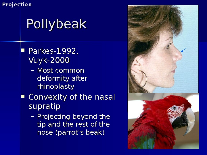 Pollybeak Parkes-1992,  Vuyk-2000 – Most common deformity after rhinoplasty Convexity of the nasal supratip –