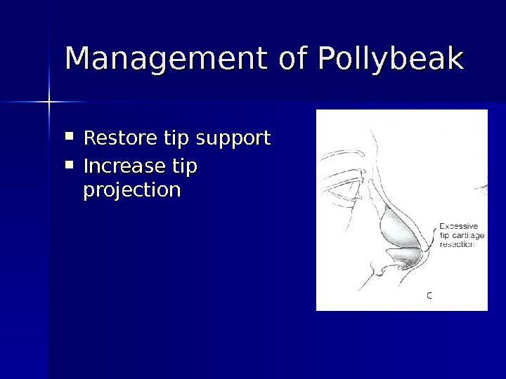 Management of Pollybeak Restore tip support Increase tip projection
