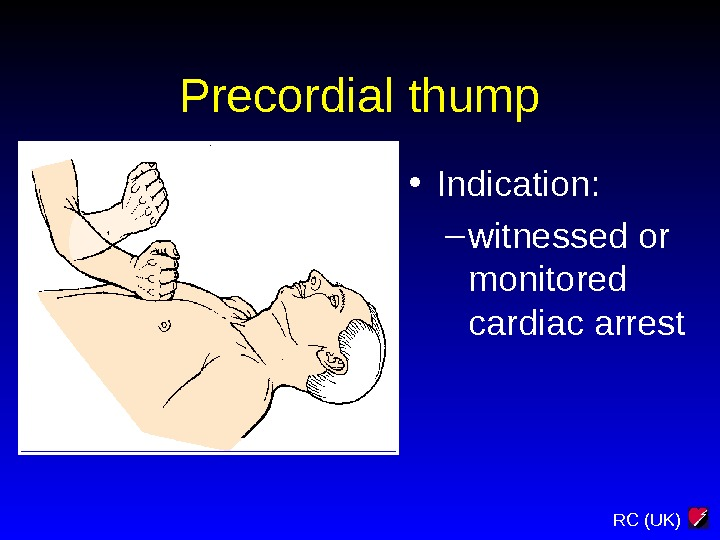 RC (UK)Precordial thump • Indication: – witnessed or monitored cardiac arrest