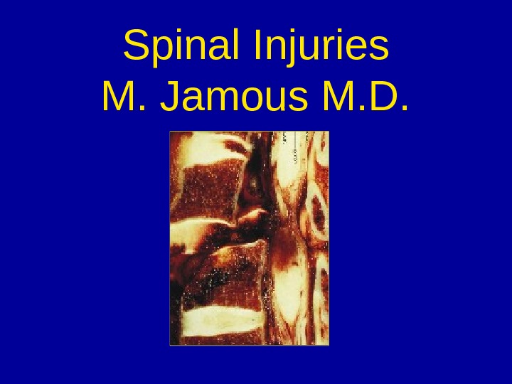 Spinal Injuries M. Jamous M. D.