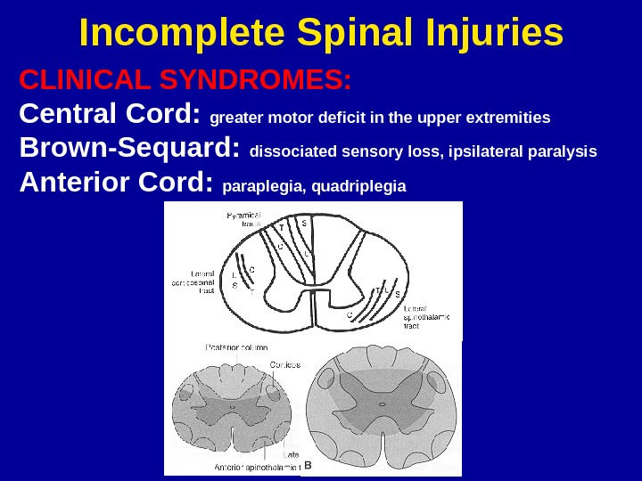 Incomplete Spinal Injuries CLINICAL SYNDROMES: Central Cord:  greater motor deficit in the upper extremities Brown-Sequard: