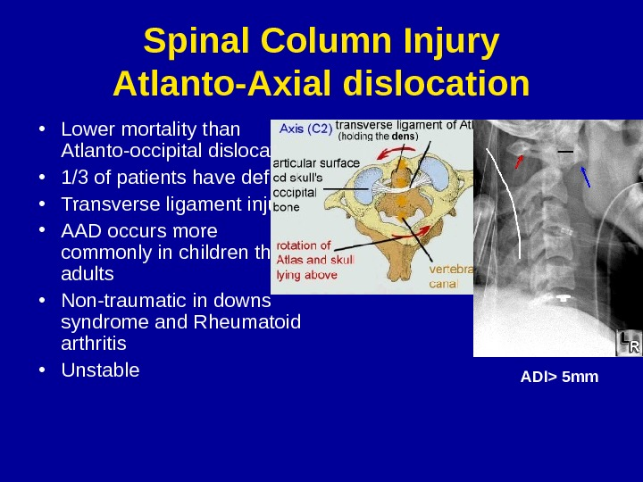 Spinal Column Injury Atlanto-Axial dislocation • Lower mortality than Atlanto-occipital dislocation • 1/3 of patients have