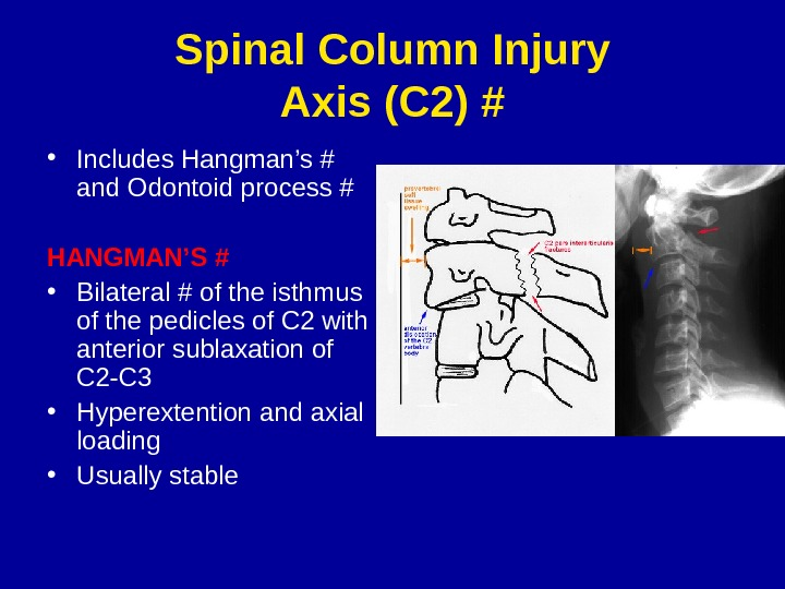 Spinal Column Injury Axis (C 2) # • Includes Hangman's # and Odontoid process # HANGMAN'S
