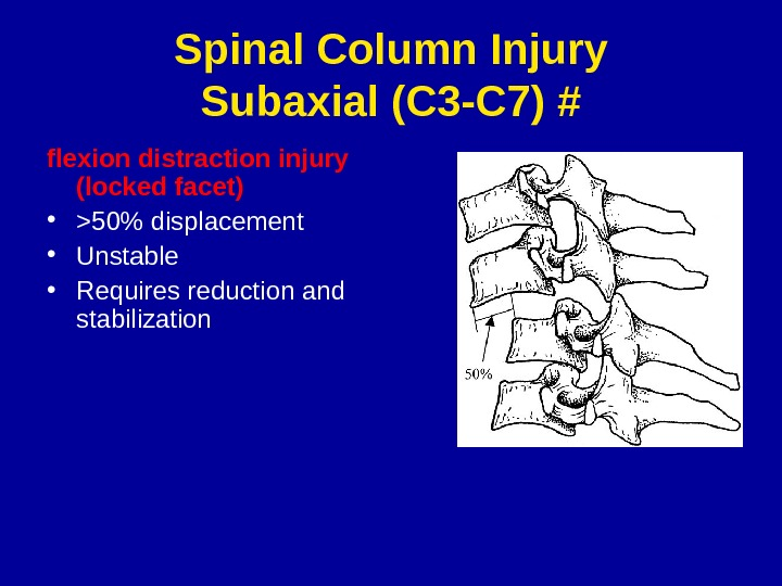 Spinal Column Injury Subaxial (C 3 -C 7) # flexion distraction injury (locked facet) • 50