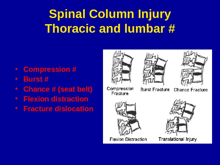 Spinal Column Injury Thoracic and lumbar # • Compression # • Burst # • Chance #