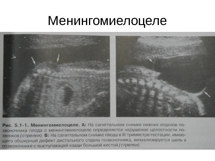 Менингомиелоцеле