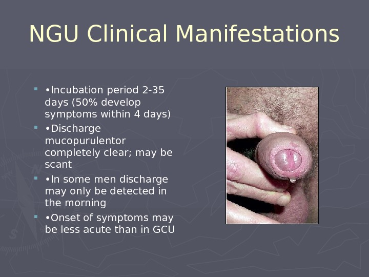 NGU Clinical Manifestations  • Incubation period 2-35 days (50% develop symptoms within 4