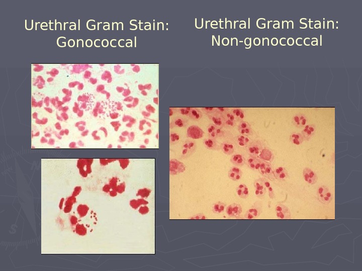 Urethral Gram Stain: Non-gonococcal. Urethral Gram Stain: Gonococcal