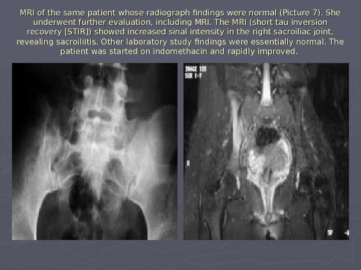 MRI of the same patient whose radiograph findings were normal (Picture 7). She underwent